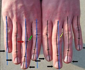 Компьютерные игры деформируют детские пальчики
